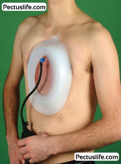 Vacuum bell treatment for pectus